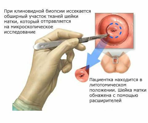 Ножевая биопсия шейки матки