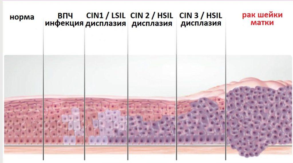 Изменение клеток шейки матки при патологии