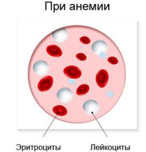 Клетки крови при анемии