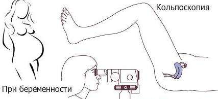 Кольпоскопия и беременность рисунок