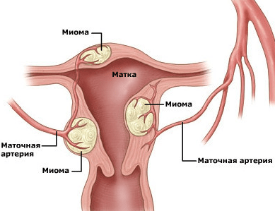 Миомы матки