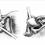 Операция Цистоэктомия яичника