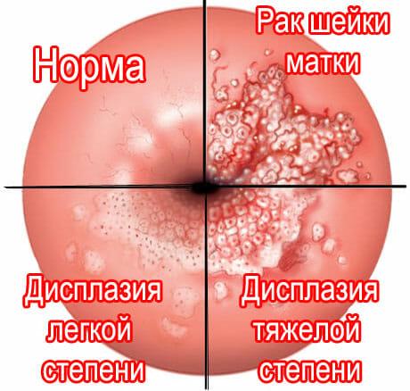 Степени дисплазии и рак шейки матки
