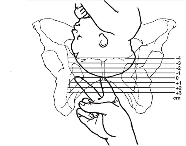 Изображение пальцев и раскрытия шейки матки