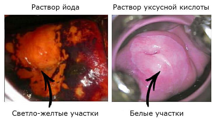 Гинекология расширенная кольпоскопия