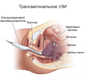 Трансвагинальное УЗИ рисунок