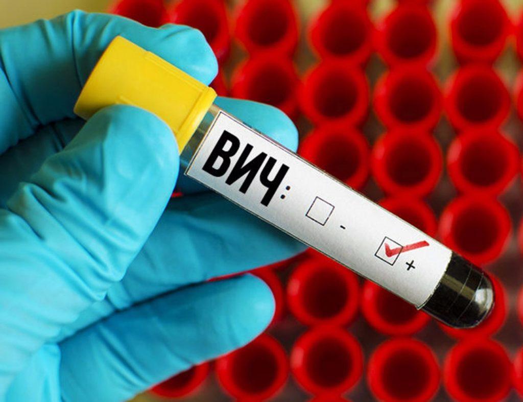 Пробирка с кровью при ВИЧ-инфекции