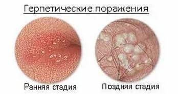 Стадии герпетической инфекции