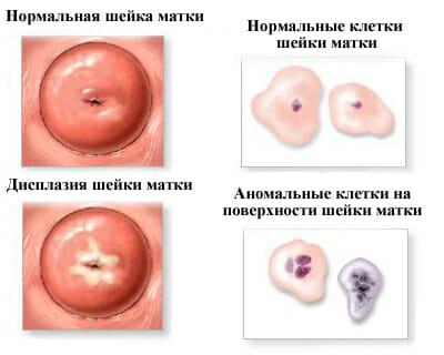 клетки шейки матки при дисплазии