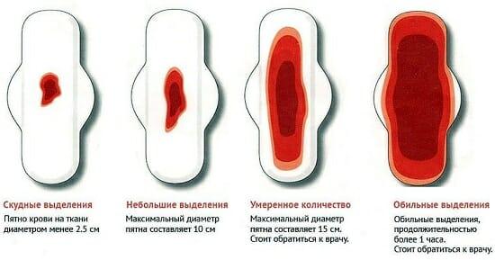 Количество выделений при месячных